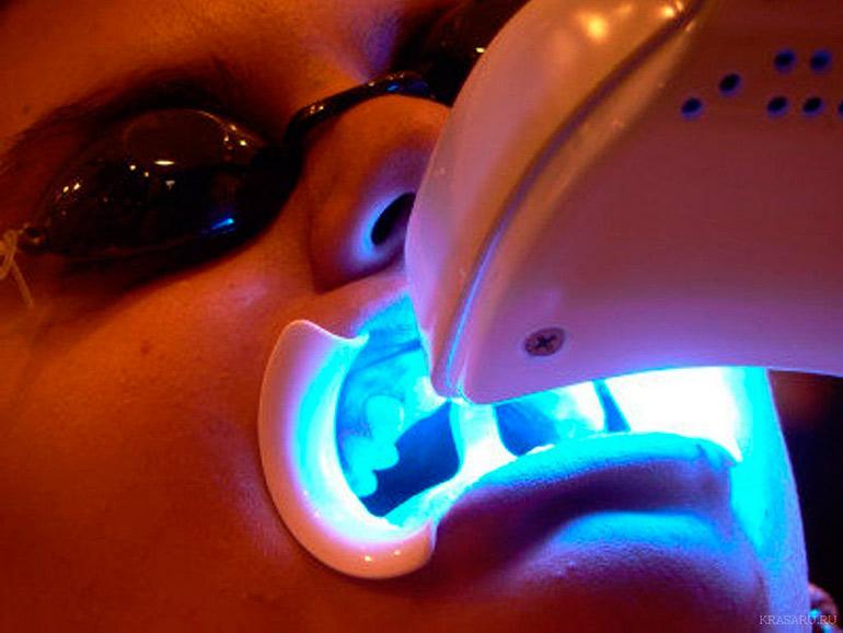 безопасное отбеливание зубов фото