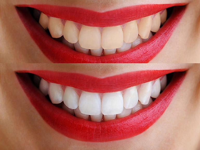 отбеливание зубов zoom фото