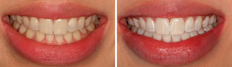 Как снизить чувствительность зубов после отбеливания
