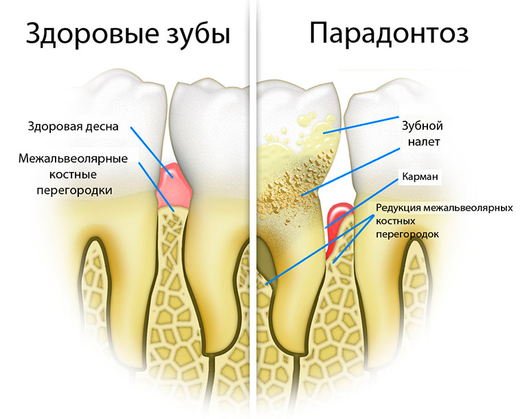 Пародонтоз: симптомы, стадии, причины возникновения