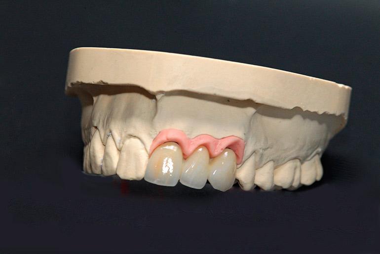 имплантанты зубов фото