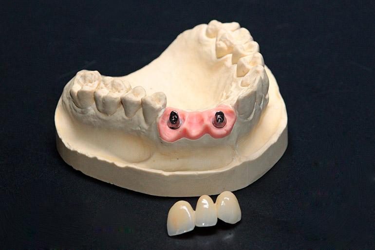 имплант зуба фото