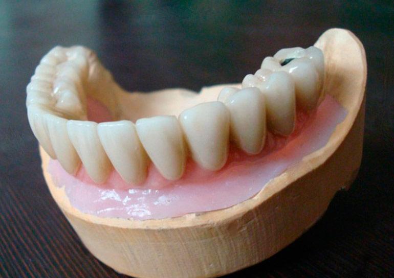 фото имплантация зубов