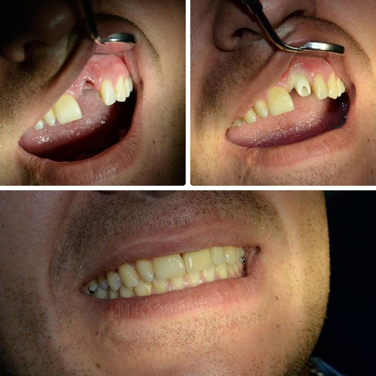 металлокерамика зубов фото работ