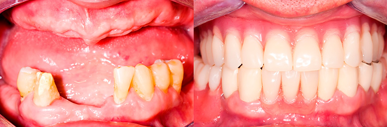 протезирование зубов харьков