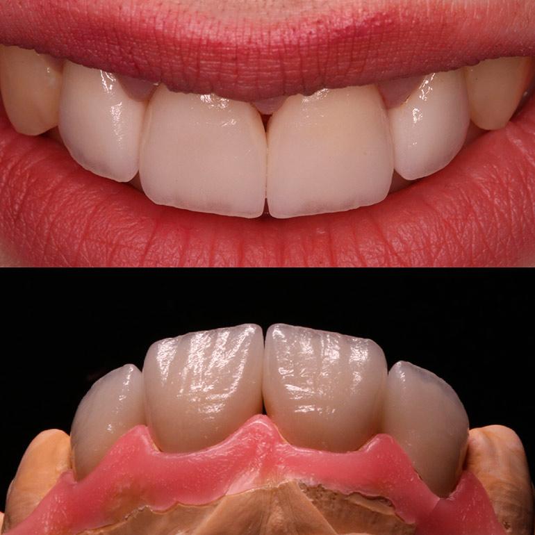 фото виниров до и после