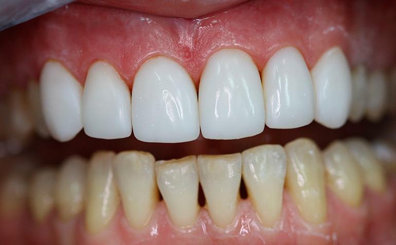 виниры на зубы изготовление