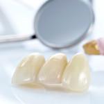 Зубные протезы: виды, изготовление, цена