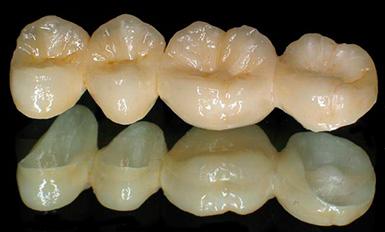 зубные протезы цена