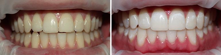 zubnye-protezy-12