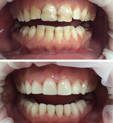 zubnye-protezy-13