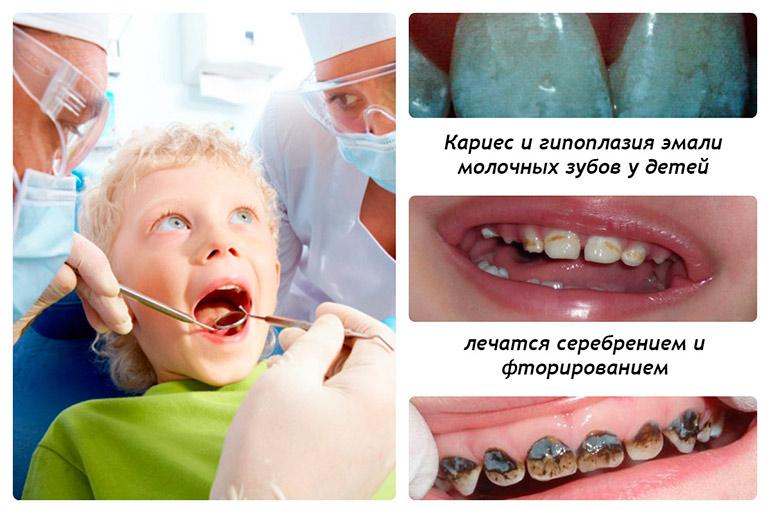 зубы у детей