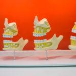 Прорезывание зубов: сроки, симптомы, порядок