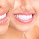 Зубы человека: эволюция развития, анатомия, виды зубо, фото