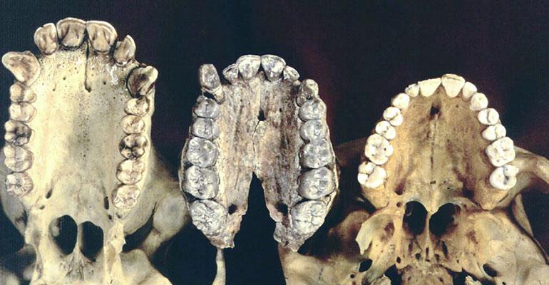 Эволюция зубов человека