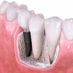 Зубные импланты: классификация, цены на импланты зубов