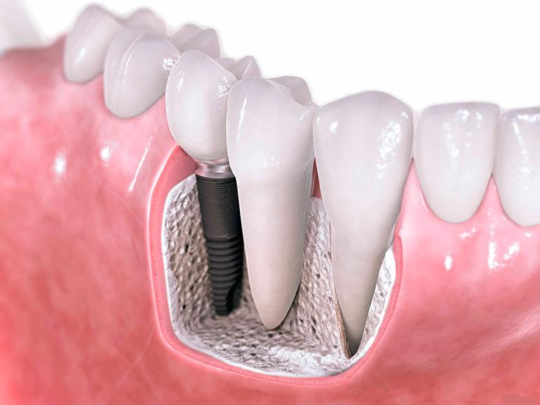Картинки по запросу зубной имплант