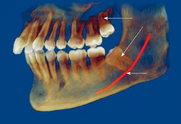 Сколько корней у зубов, количество каналов в зубах верхних и нижних