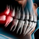 Зуб мудрости: фото, строение и отличие от других зубов