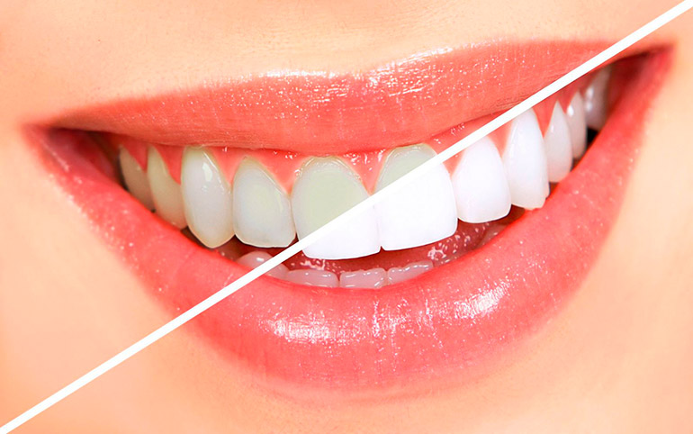 Как хорошо чистить зубы