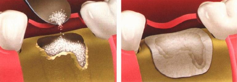 искусственная кость в стоматологии