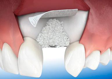 наращивание кости верхней челюсти