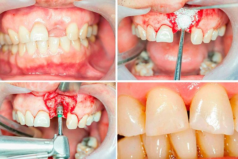 имплантация зубов наращивание костной ткани