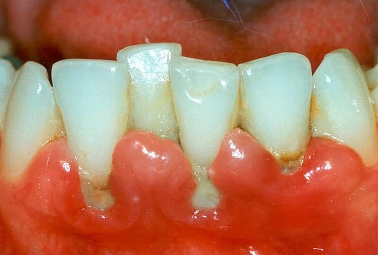 Воспаление десен: лечение, профилактика | Гид по Стоматологии