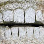 Зубной камень: симптомы, причины, удаление