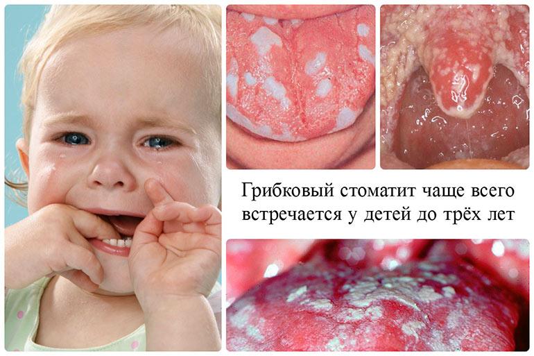 как выглядит стоматит у детей