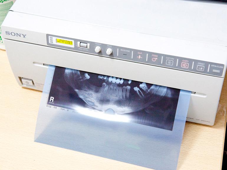 печать панорамного снимка зубов