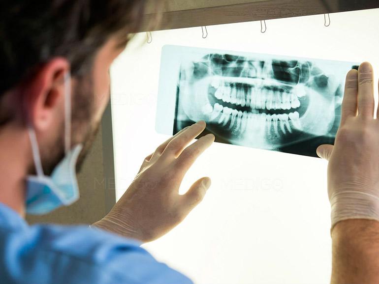 изучение рентгена зубов