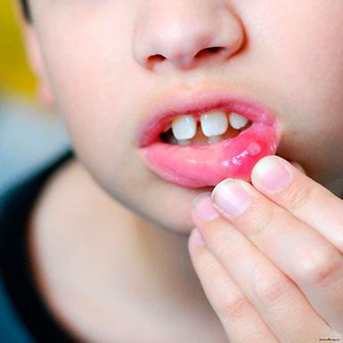 стоматит у детей лечение в харькове