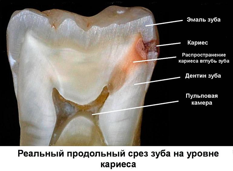 как выглядит кариес в разрезе