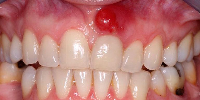 киста на переднем верхнем зубе