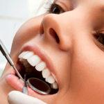 Пломбирование зубов: виды, материалы, этапы установки
