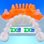 Протезирование на стеклянной опоре zx 27: описание, фото, показания и противопоказания