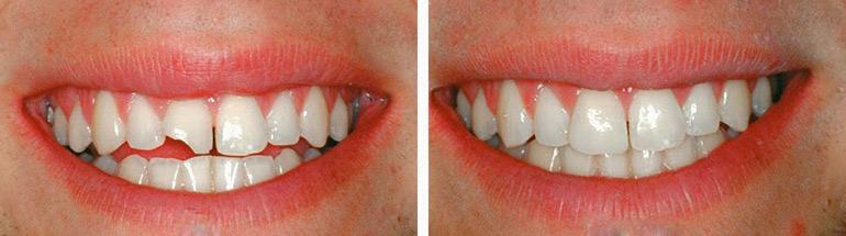 Реставрация передних зубов: