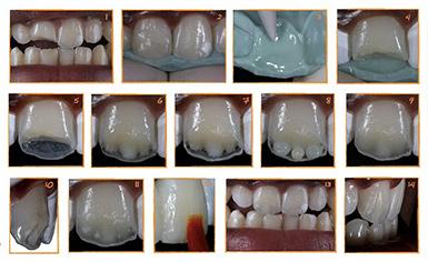 методы и способы реставрации зубов