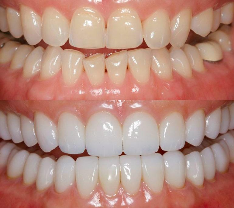 Реставрация зубов цены фото