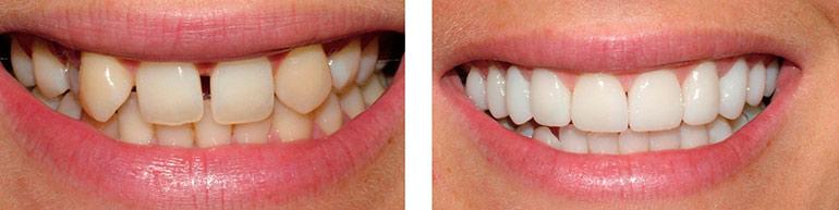 отзывы о художественной реставрации зубов