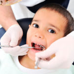 Кариес молочных зубов: стадии и причины появления