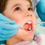 Лечение глубокого и среднего кариеса молочных зубов у детей