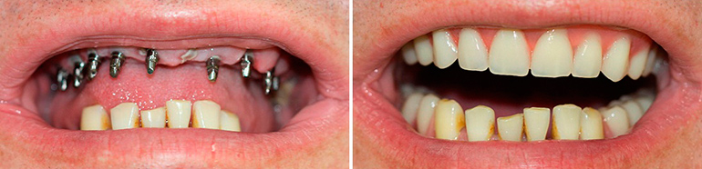 одноэтапная имплантация зубов фото