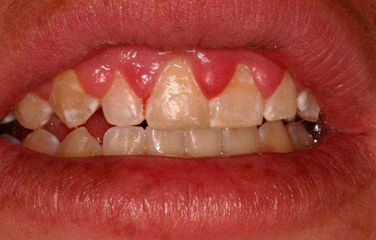 Опухла десна возле зуба и болит - что делать и как лечить?