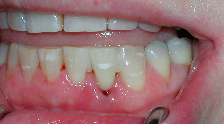 Шинирование для выравнивания зубов