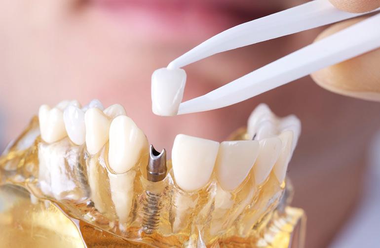 Сколько служат коронки на зубы