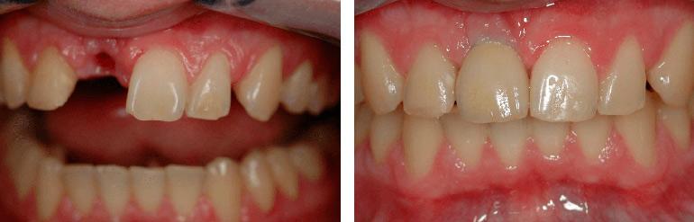 Коронка на зуб фото