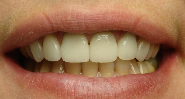 Мостовидные коронки на передние зубы