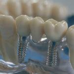 Мостовидный протез на зубы – виды, стоимость, этапы изготовления